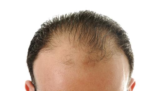 padani vlasu