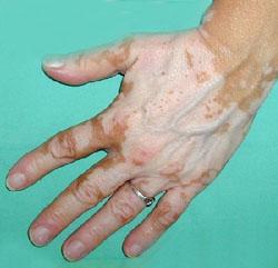 Que arreglar las manchas de pigmento sobre la persona del bronceado
